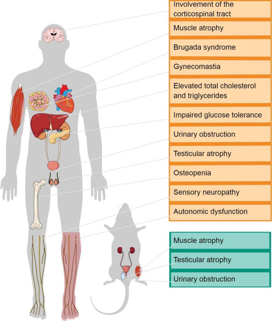 sintomi dell'Atrofia Muscolare Spinale e Bulbare